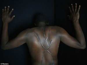 A Sudanese immigrant in Greece displays the scars on his back from an attack by Golden Dawn
