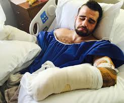 Stanislav Petrov recovering from the beating at the hands of the SF Sheriff's deputies.